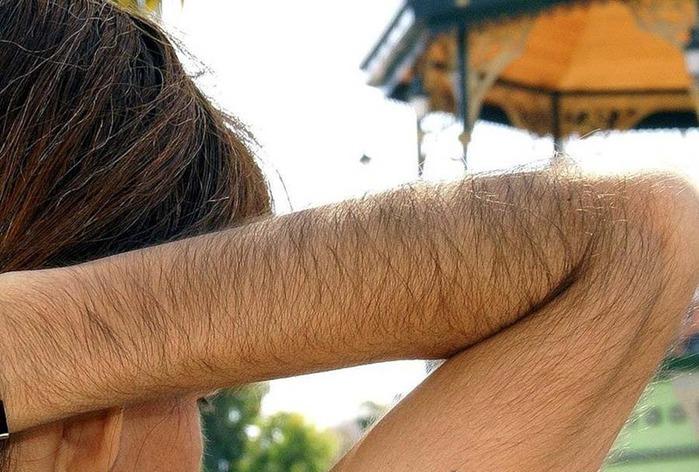 Способы избавления от волос на руках