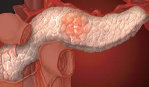 Правила, соблюдение которых поможет улучшить состояние поджелудочной железы