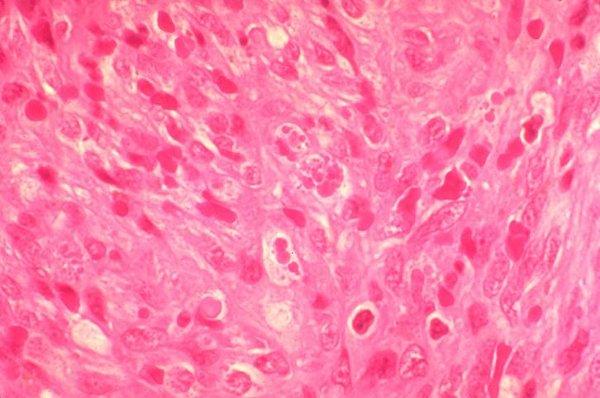 Саркома мягких тканей –  лечение онкологии в Израиле