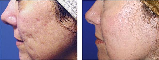 Подтяжка лица без операции ДОТ-процедура