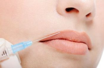 Контурная пластика губ и носогубных складок