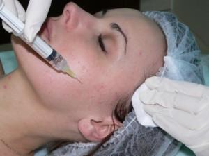 Универсальный метод омоложения: мезотерапия