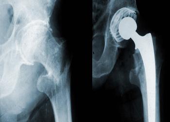 Цирроз печени и остеопороз