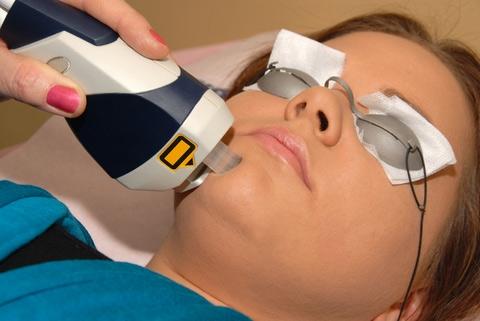 Чем полезна лазерная шлифовка кожи