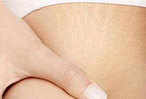 Как худеть, чтобы не было растяжек