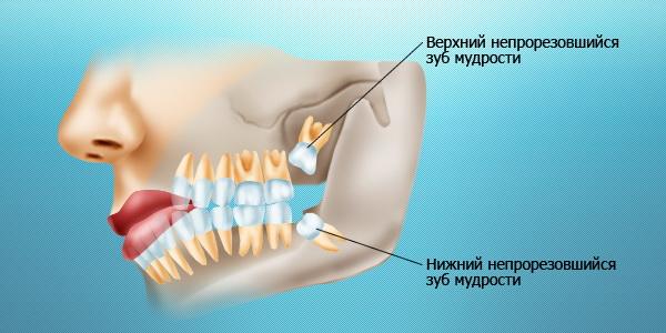 Зуб мудрости: сохранить или удалить?