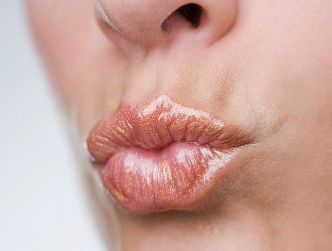 Силикон в губы: каприз или необходимость?