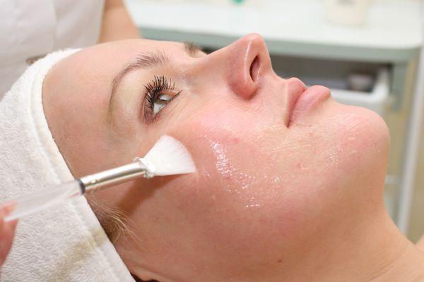 Чем полезен ретиноловый пилинг лица