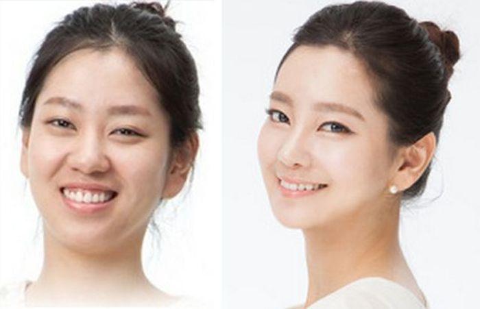 Южная Корея усиливает контроль за сферой эстетической медицины