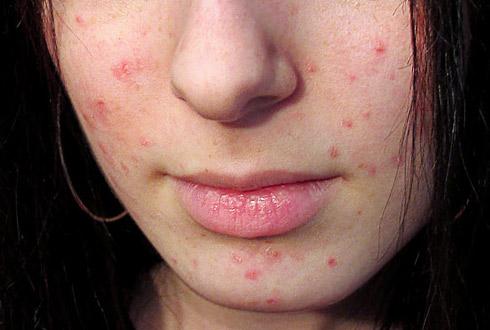Как очистить кожу от чёрных точек и прыщей