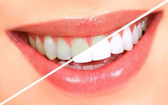 Рецепты отбеливания зубов народными средствами