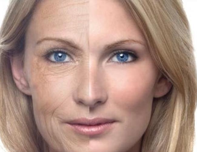 Увядающая кожа как выглядит