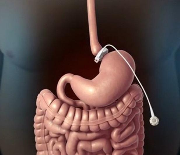 Пластические хирурги помогут избавиться от лишнего веса
