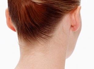 Отопластика: показания и противопоказания к коррекции ушей