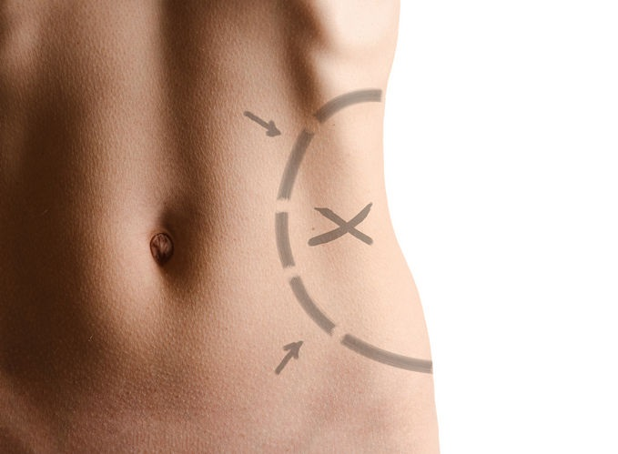 как удалить жир с тела цена
