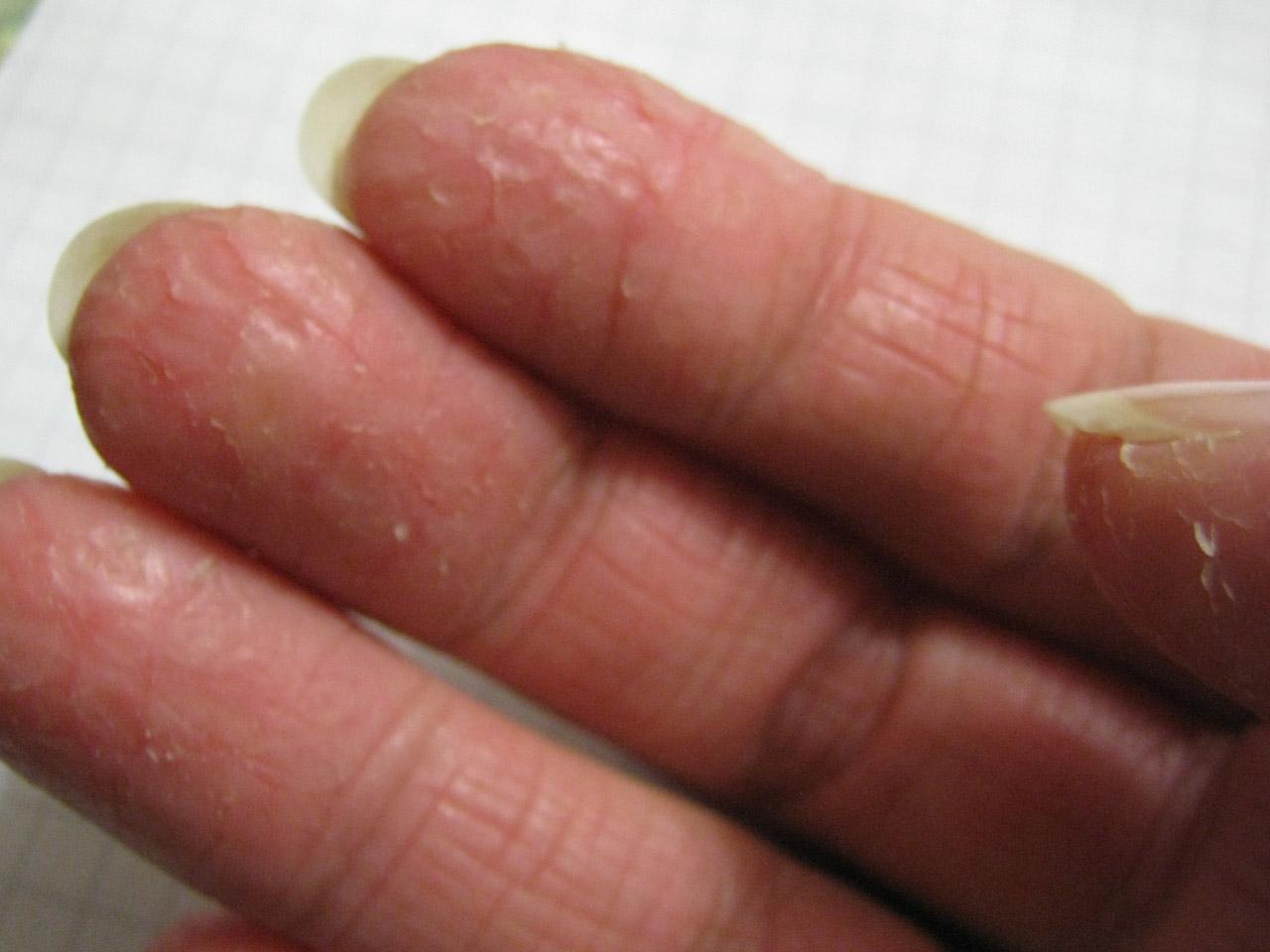 Трещинки на пальцах – сигнал о наличии болезни