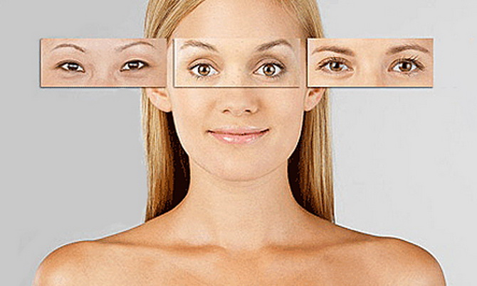 Блефаропластика: молодость и красота глаз