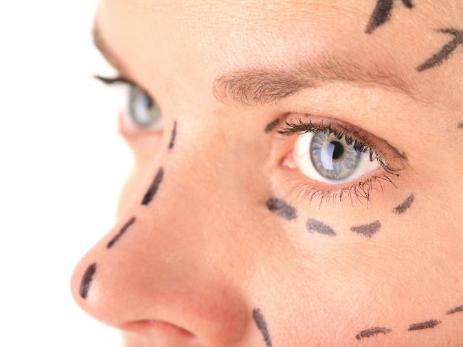 Пластическая хирургия носа – особенности процесса