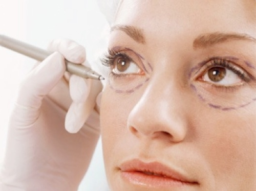 Блефаропластика: решение проблем с формой глаз и состоянием кожи век