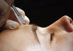 Косметическая операция по подтяжке лба – отличное средство для лечения мигрени