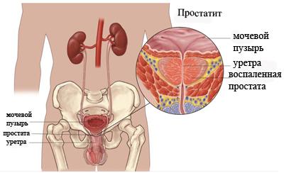 Комплекс мер по лечению хронического простатита