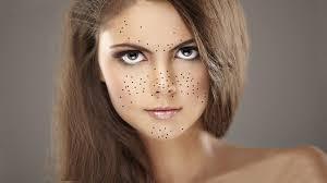 Черные точки в области носа