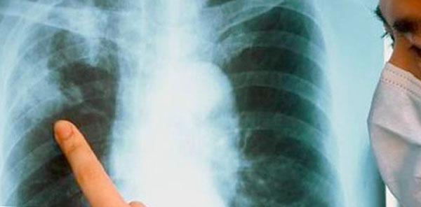 Еще раз о туберкулезе