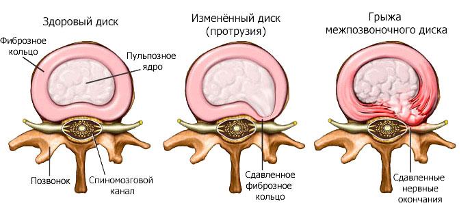 Протрузия дисков. Методы лечения