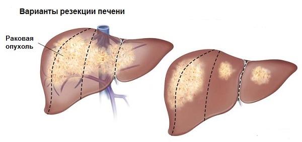 Рак печени – лечение