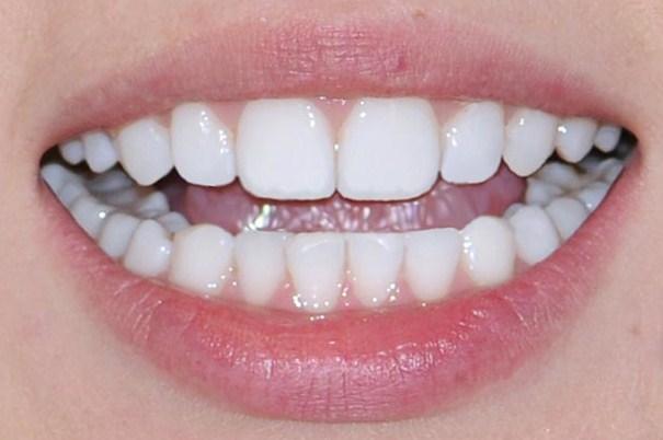 Ровные и красивые зубы