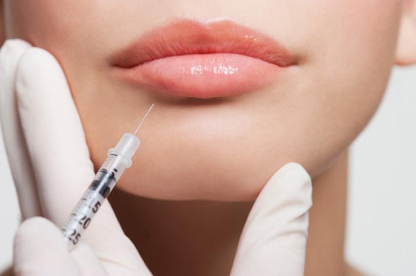 Улыбка «уточкой»: причины неудачного увеличения губ