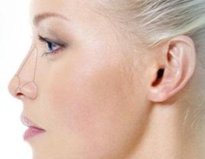 Ринопластика и эстетика носа
