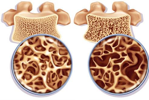 Остеопороз. Симптомы и профилактика