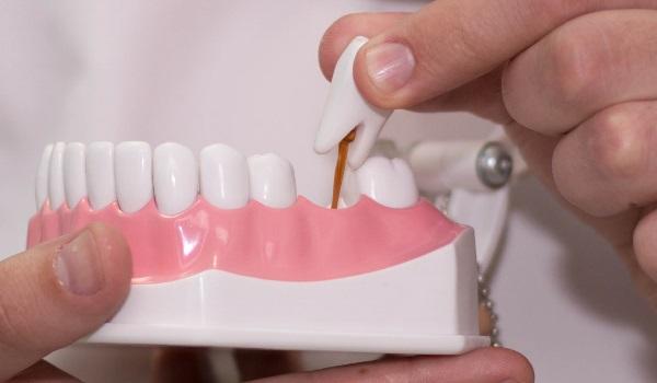 Чем занимается стоматолог-ортопед?