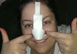 После пластической операции американке приходится регулярно брить… нос