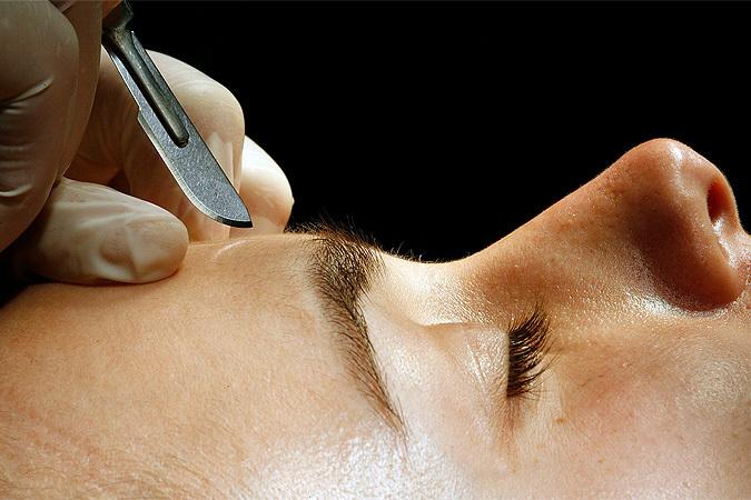 Пластические операции на лице ведут к старению мозга и нервным срывам