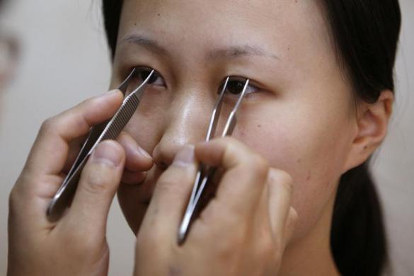 Более 7 млн китайцев улучшили внешность с помощью операции в 2014 году