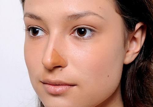 Уменьшение носа: оптимальное решение эстетических проблем