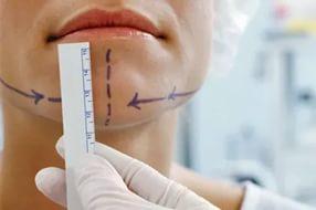 Хирургия подбородка: новая мода в США