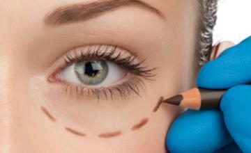 Омоложение глаз с помощью блефаропластики