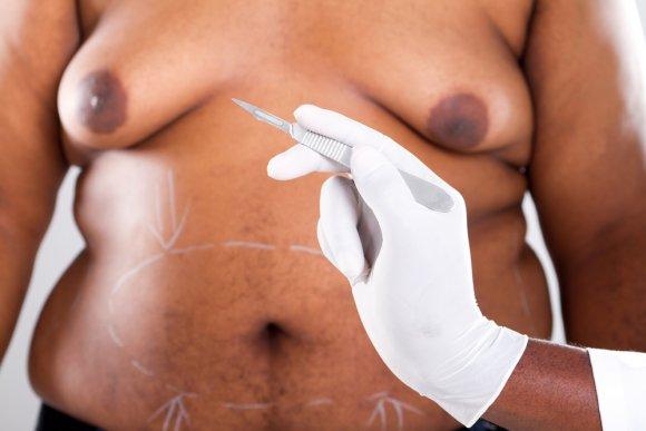 Хирургическое лечение гинекомастии: операция и всё, что нужно о ней знать