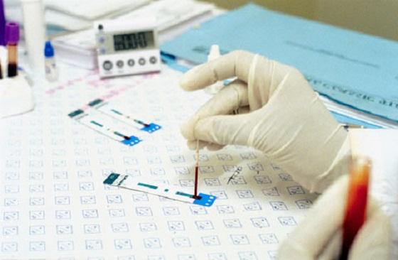 Анализ ХГЧ в лаборатории CMD