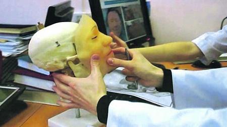 Проведена уникальная операция по трансплантации лица