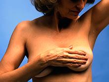 Медики признали липофилинг абсолютно безопасным методом восстановления груди
