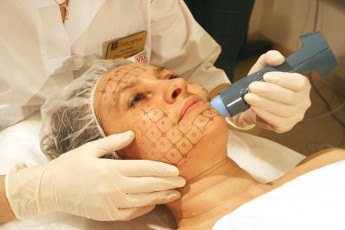 Термаж: метод безоперационного лифтинга кожи