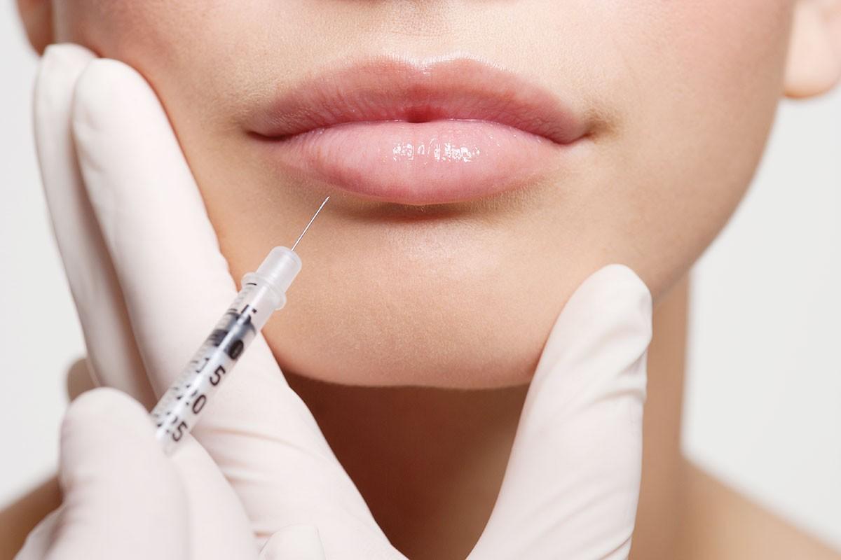Контурная пластика губ: возможные осложнения