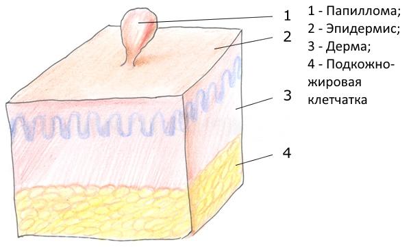 Папилломы кожи