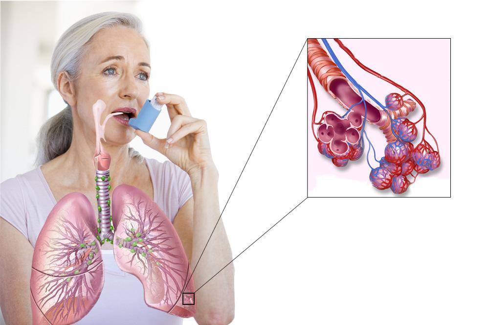 Заболевание дыхательных путей — бронхиальная астма