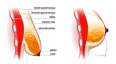 Пластическая хирургия: секрет идеальной груди