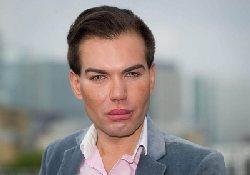 Живой двойник Кена, друга куклы Барби, может лишиться носа…